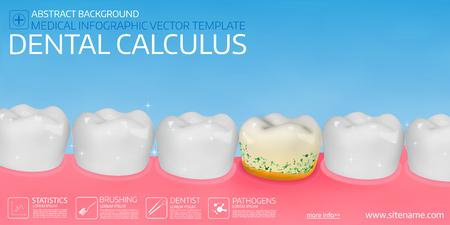 Dental calculus horisontal medical banner template. Vector illustration. Illustration