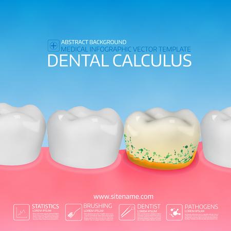 Calcul dentaire avec des bactéries. Illustration vectorielle colorée Modèle d'infographie. Banque d'images - 91027847