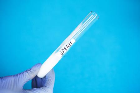 Health. Sample sperm. Donor Sperm. Close up Concept of Bank Sperm. Test Tube with Sperm Stok Fotoğraf