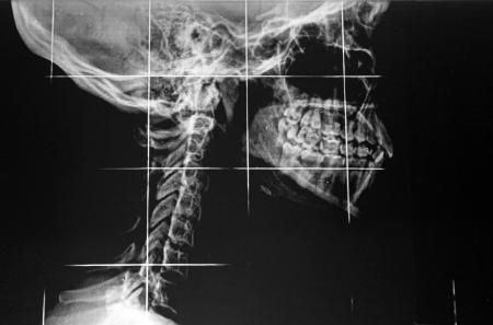 molares: De rayos X de la mand�bula y el cuello Foto de archivo