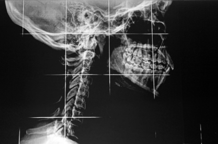 x ray skeleton: X-ray of jaw and neck Stock Photo