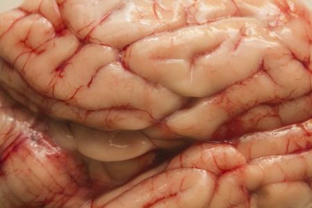 dispossession: Brain texture