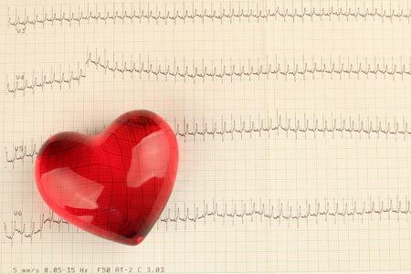Printed ECG, as background