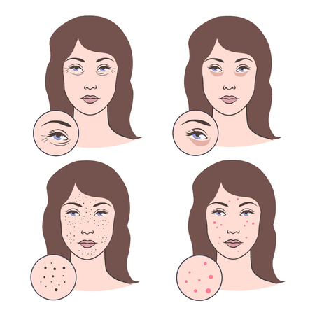 pimples: Vector illustration of skin problems: wrinkles, acne, pimples. Different face diseases vector set. Beautiful woman with aging troubles - wrinkles, sags, spots. Dermatology problems.