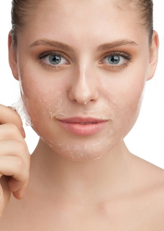 Close-up of beautiful young woman removing old damaged skin from her face