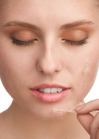 Close-up of beautiful young woman removing old damaged skin from her face photo