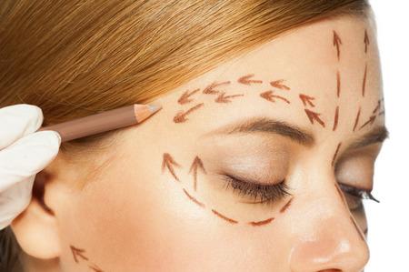 kunststoff: Schöne junge kaukasische Frau mit Perforationslinien auf ihrem Gesicht vor der plastischen Chirurgie Betrieb. Kosmetikerin berühren Frau Gesicht.