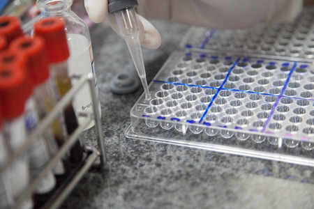 sample tray: HIV test. Add reagent to reaction plate Stock Photo