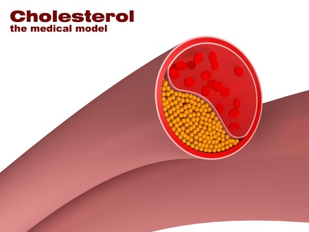 model of cholesterol disease in artery photo