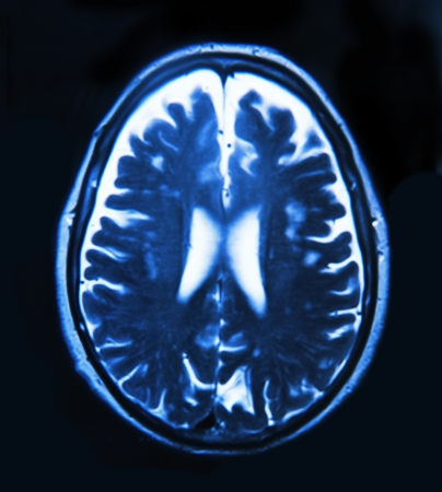 brain injury: Imaging of the brain on x-ray