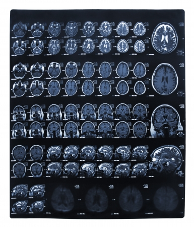 Imaging of the brain on x-ray Stock Photo - 18152562