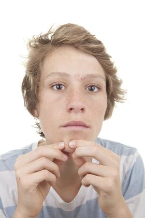 pus: ragazzo con la pubert� acne macchie Archivio Fotografico