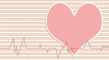 Medical abstract background showing an ecg heart beat over a technical grid  Stock Photo - 11785240