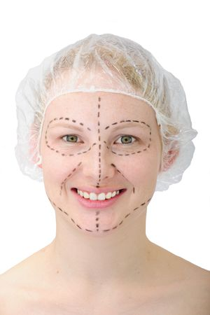 happy woman before plastic surgery face lift photo