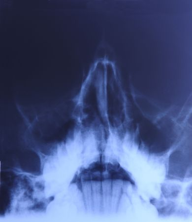 radiographic: X-ray of head:  Sinusitis. Concentric mucosa thickening of maxillary sinuses