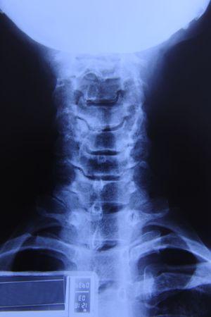 umschwung: R�ntgen des Halses: Umkehrung der Zervikale Lordose, reduzierte Disc H�he, Degeneration, Arthrosen
