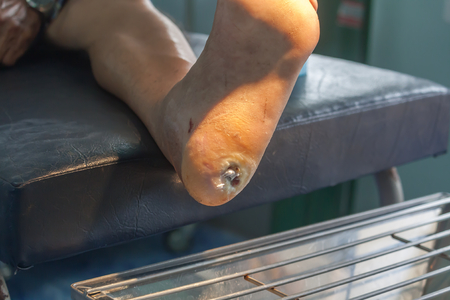 infected wound of diabetic foot