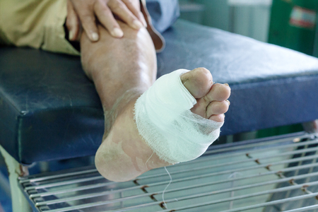 infected wound of diabetic patient foot 免版税图像 - 91801078