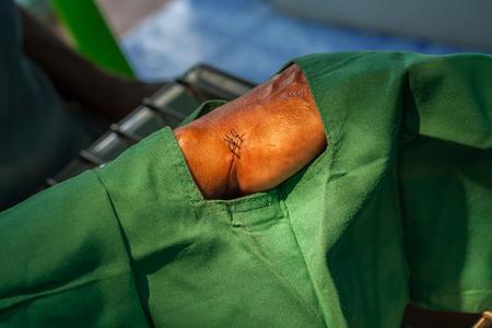 Hand incise wound for dressing Reklamní fotografie
