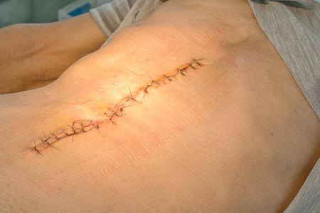 Abdomen scar after surgery stomach cancer Banque d'images