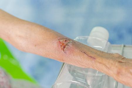 arm wound closeup dressing set