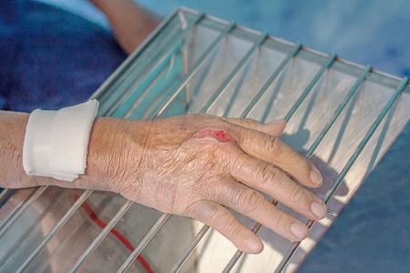dressing hand wound,treatment skin Standard-Bild