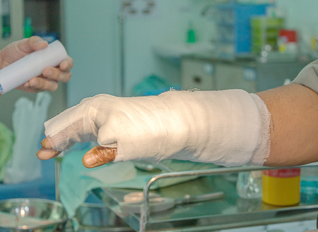 Dressing burned wound hand with gauze pad 스톡 콘텐츠