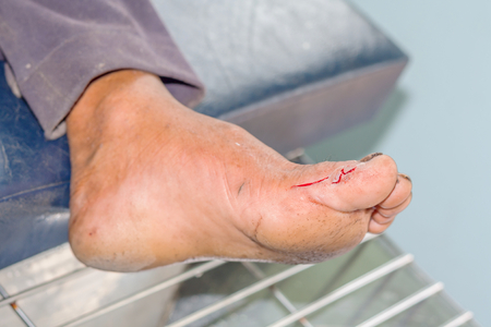 surgical wound foot of man