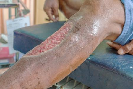 infected wound patient man leg