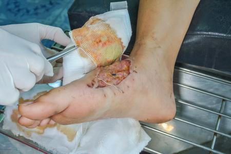 plaie infectée, pied de femme patiente