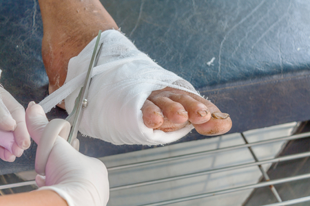 nfected wound of diabetic foot
