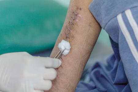 surgical stapler arm after broken