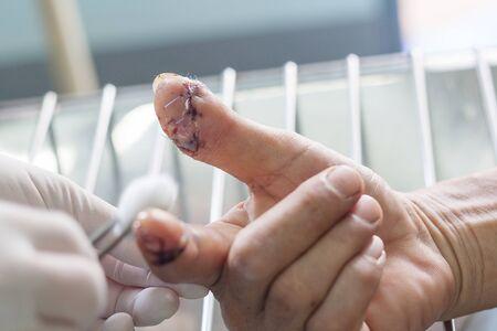 cutting wound finger,closeup dressing