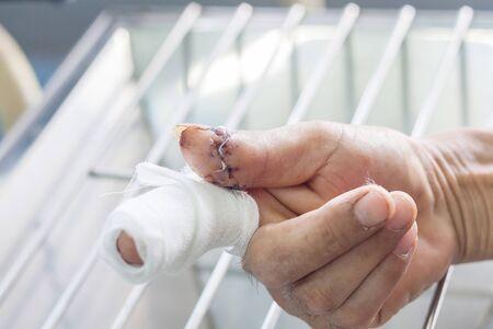 cutting wound finger,closeup dressing 免版税图像 - 131918887