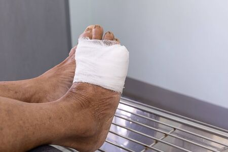 dressing patient foot infected wound