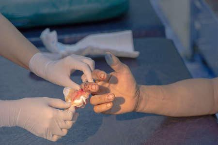 closeup dressing of Internal fixation of finger fractures,intramedullary nail