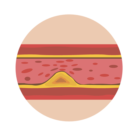 Vector image of a human vessel with deposits on the walls preventing blood circulation. EPS 10