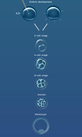 fertilization: Embriogenesis embrio genesis . In vitro fertilization IVF . Artificial insemination. ICSI. Male infertility. Illustration for web or typography magazine, brochure, flyer, poster Illustration