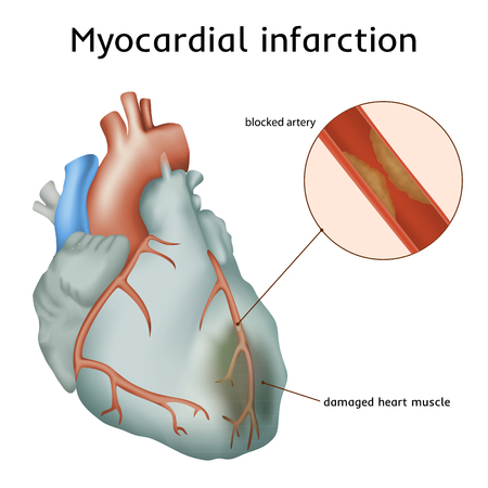 infarction: Myocardial infarction. Heart attack. Blocked artery, damaged heart muscle. Anatomy illustration. Colorful image, white background