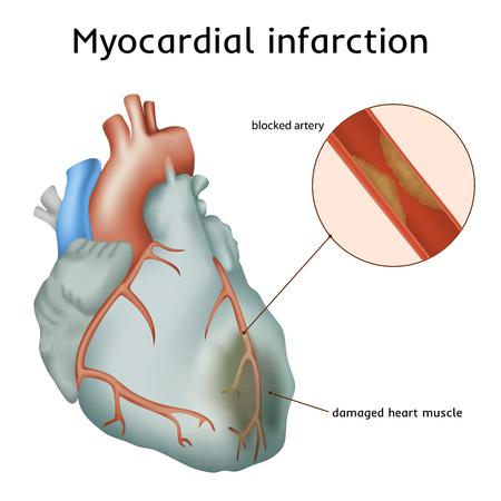 Myocardinfarct. Hartaanval. Verstopte slagader, beschadigde hartspier. Anatomie illustratie. Kleurrijk beeld, witte achtergrond