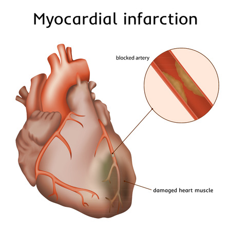 myocardial infarction: Myocardial infarction. Heart attack. Blocked artery, damaged heart muscle. Anatomy illustration. Red image, white background
