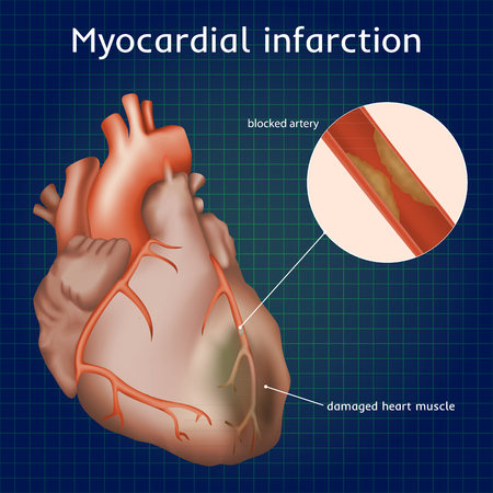 Myocardial infarction. Heart attack. Blocked artery, damaged heart muscle. Anatomy illustration. Red image, dark blue science background