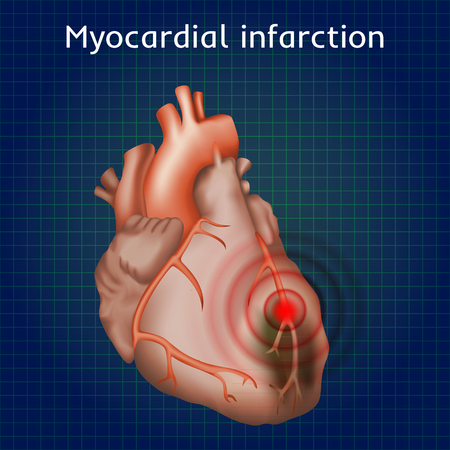 infarct: Myocardial infarction. Heart attack, pain. Damaged heart muscle. Anatomy illustration. Red image, dark blue science background