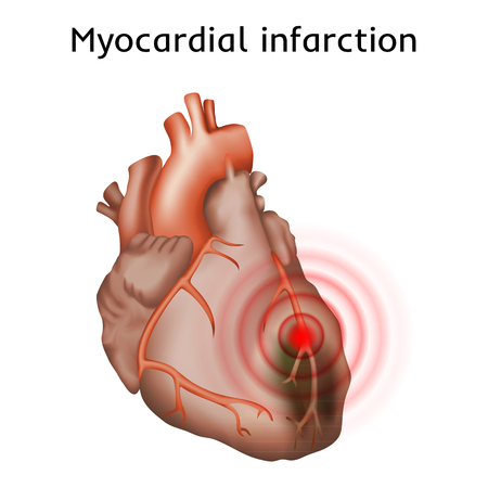infarction: Myocardial infarction. Heart attack, pain. Damaged heart muscle. Anatomy illustration. Red image, white background