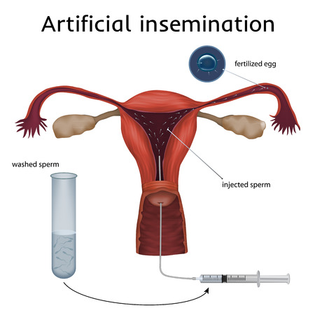 Artificial insemination. The fertilized egg, washed, injected sperm, uterus, womb, syringe. Anatomy illustration. White background