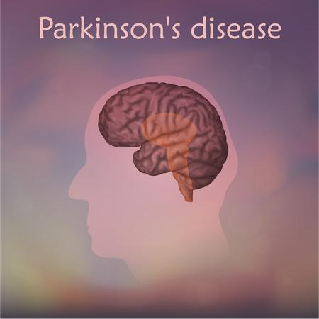 Parkinsons disease poster