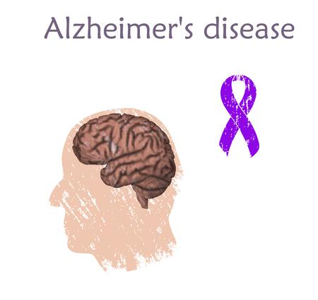Alzheimers disease Vector medical illustration Illustration