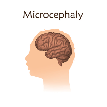 Microcephaly. White background. Silhouette of child head, brain.