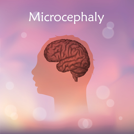 Microcephaly with a child head silhouette and a brain.