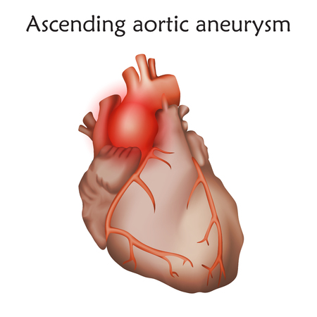 Ascending aortic aneurysm with Damaged heart muscle for Anatomy illustration.